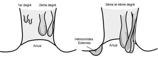 Hémorroïdes : qu'est-ce que c'est? - Commentguerir