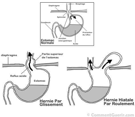 Reflux gastro oesophagien traitement