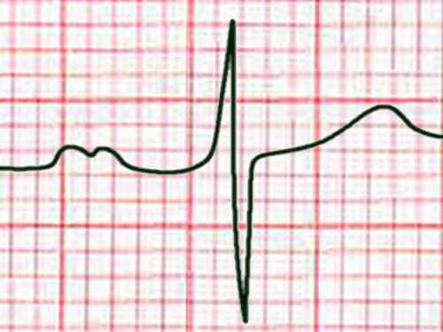 Aspect bifide de l'onde P en D2 dans l'HAG