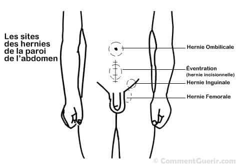 Hernies – Ce que vous devez savoir sur les hernies