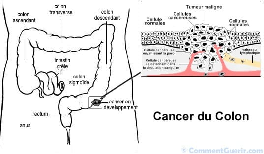 Cancer colon