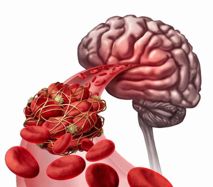 Illustration d'un caillot de sang dans un vaisseau cérébral