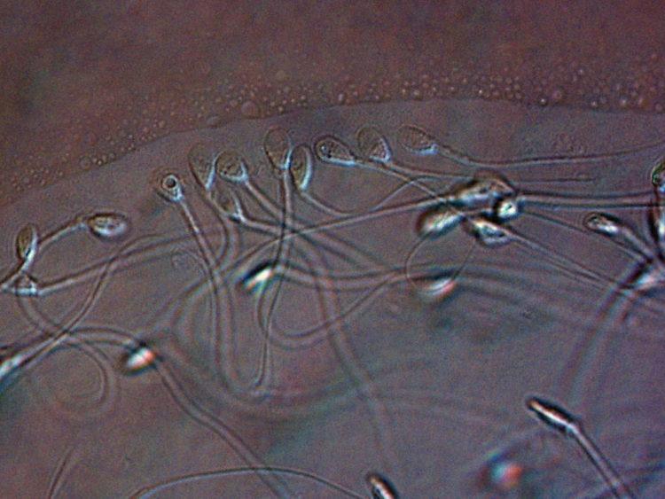 Spermatozoïdes au microscope