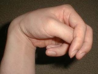 Crampes musculaires dans tous le corps lors d'une crise de tétanie