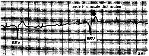 Extrasytoles ventriculaires unifocales